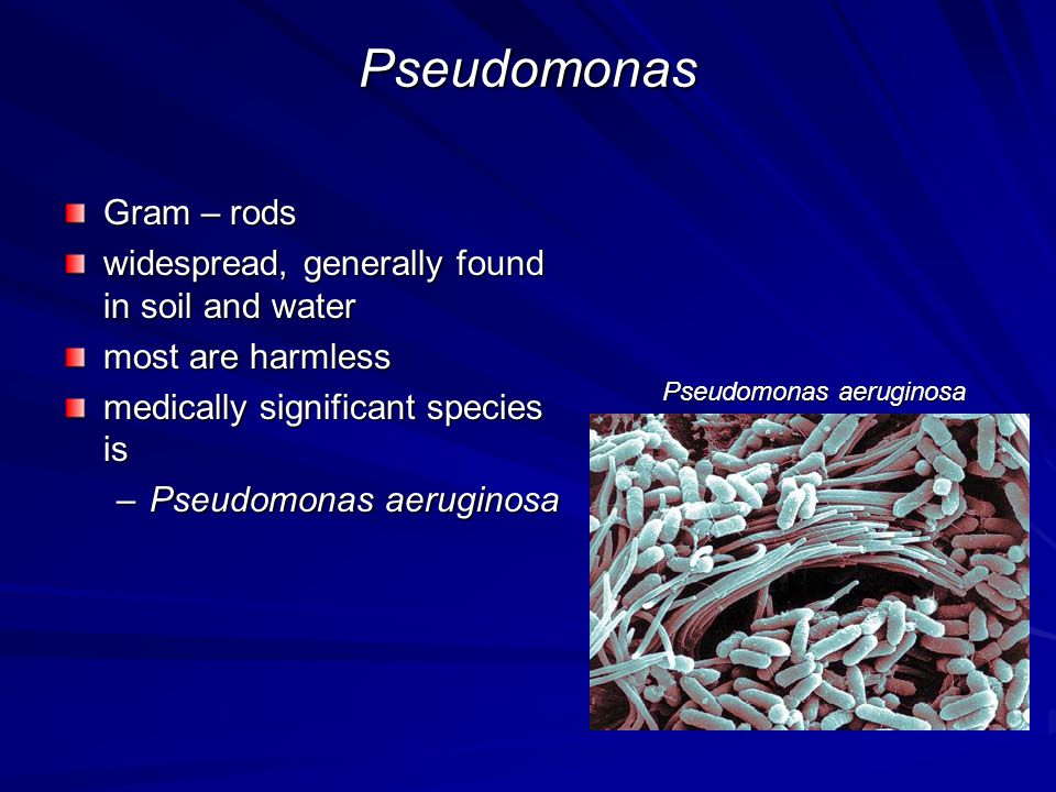 Pseudomonas Gram – rods widespread, generally found in soil and water
