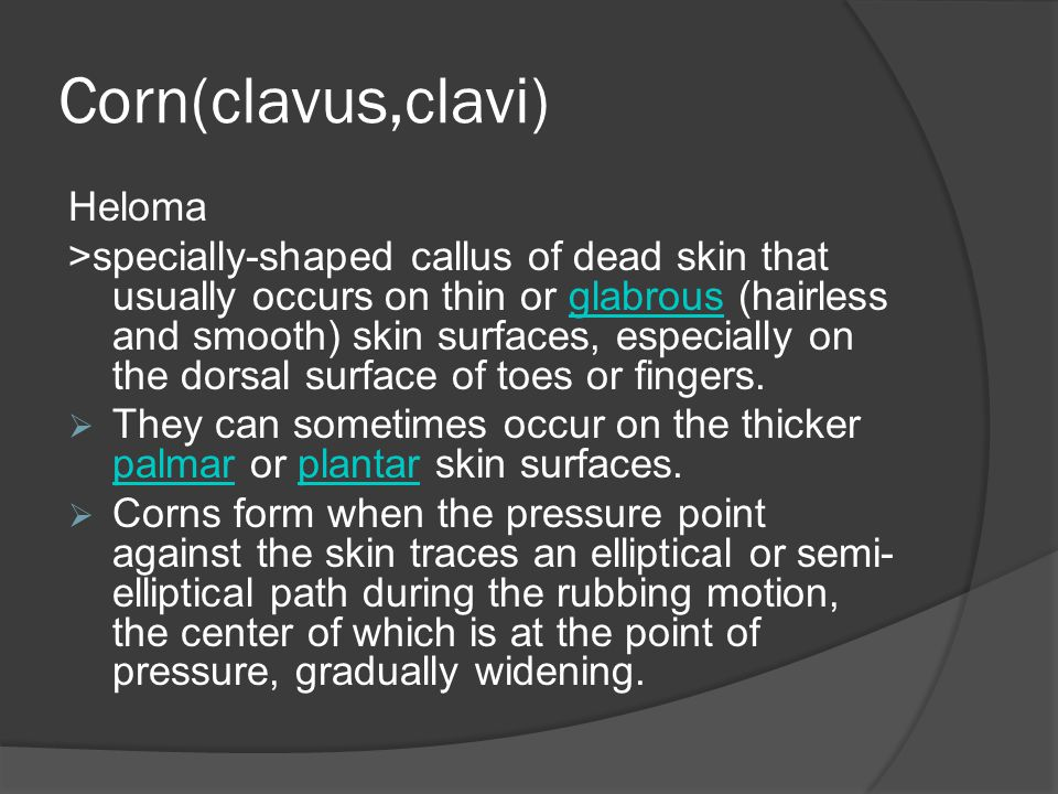 Corn(clavus,clavi) Heloma