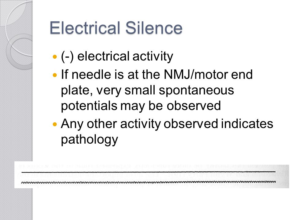 Electrical Silence (-) electrical activity