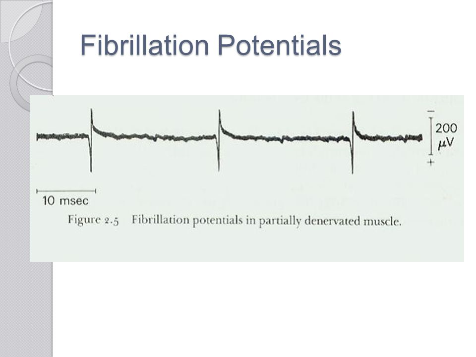 Fibrillation Potentials