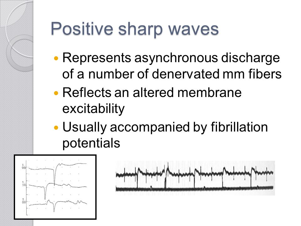 Positive sharp waves Represents asynchronous discharge of a number of denervated mm fibers. Reflects an altered membrane excitability.