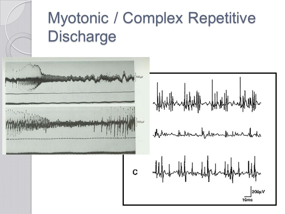 Myotonic / Complex Repetitive Discharge