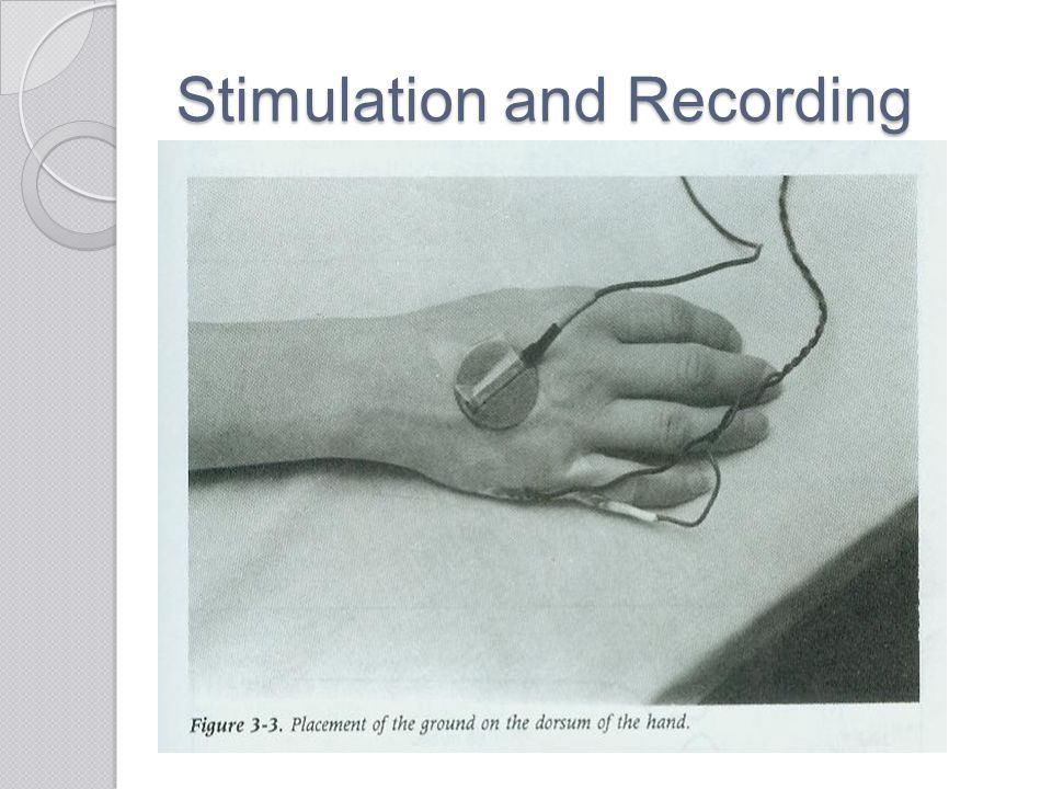 Stimulation and Recording