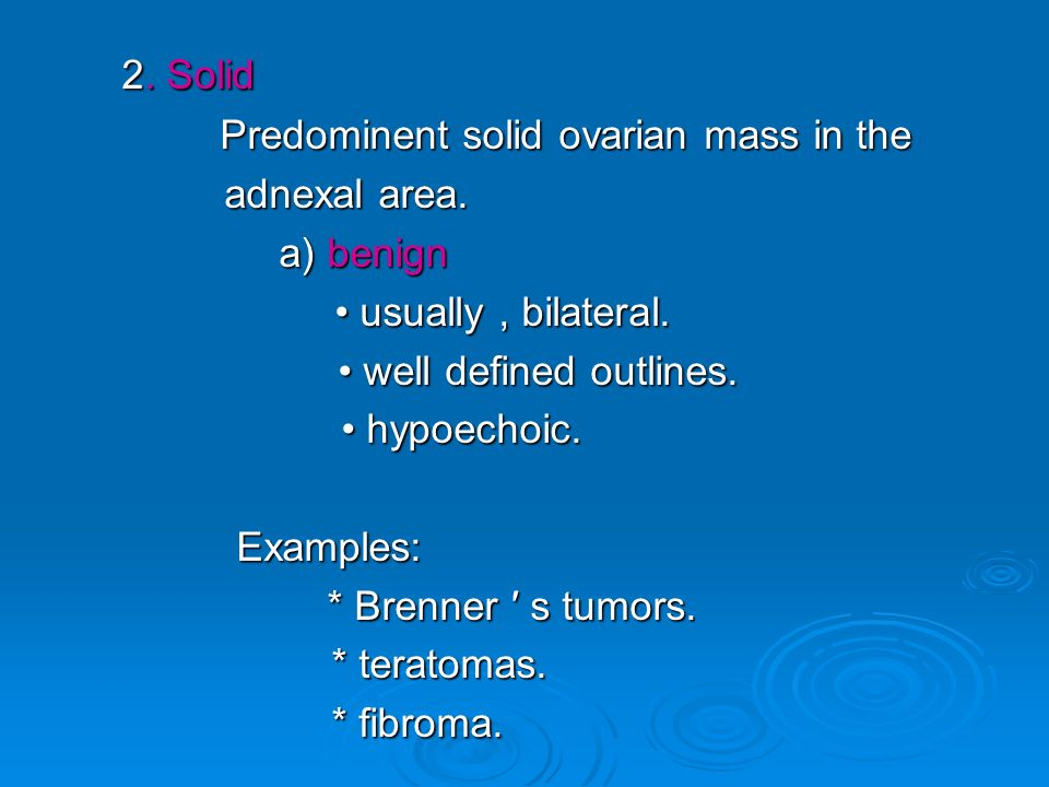 2. Solid Predominent solid ovarian mass in the adnexal area. a) benign