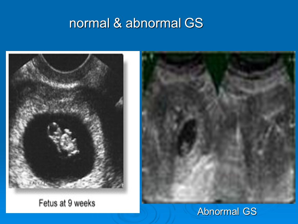 normal & abnormal GS Abnormal GS