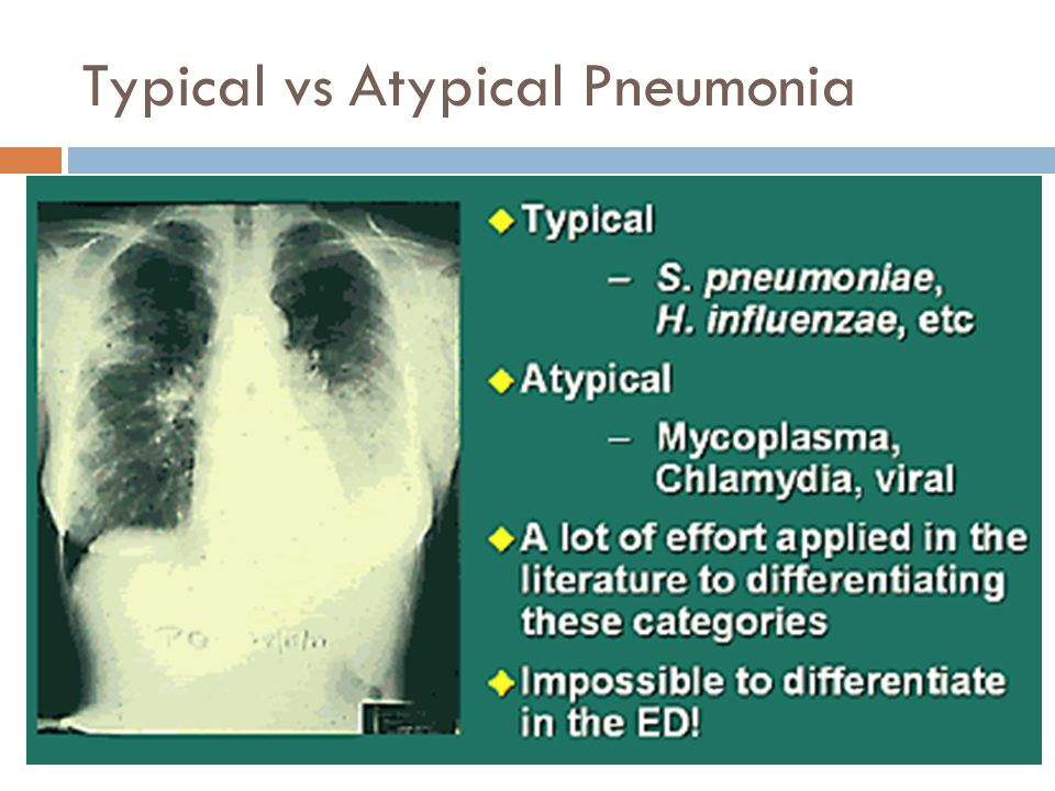 Typical vs Atypical Pneumonia