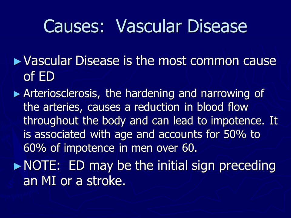 Causes: Vascular Disease