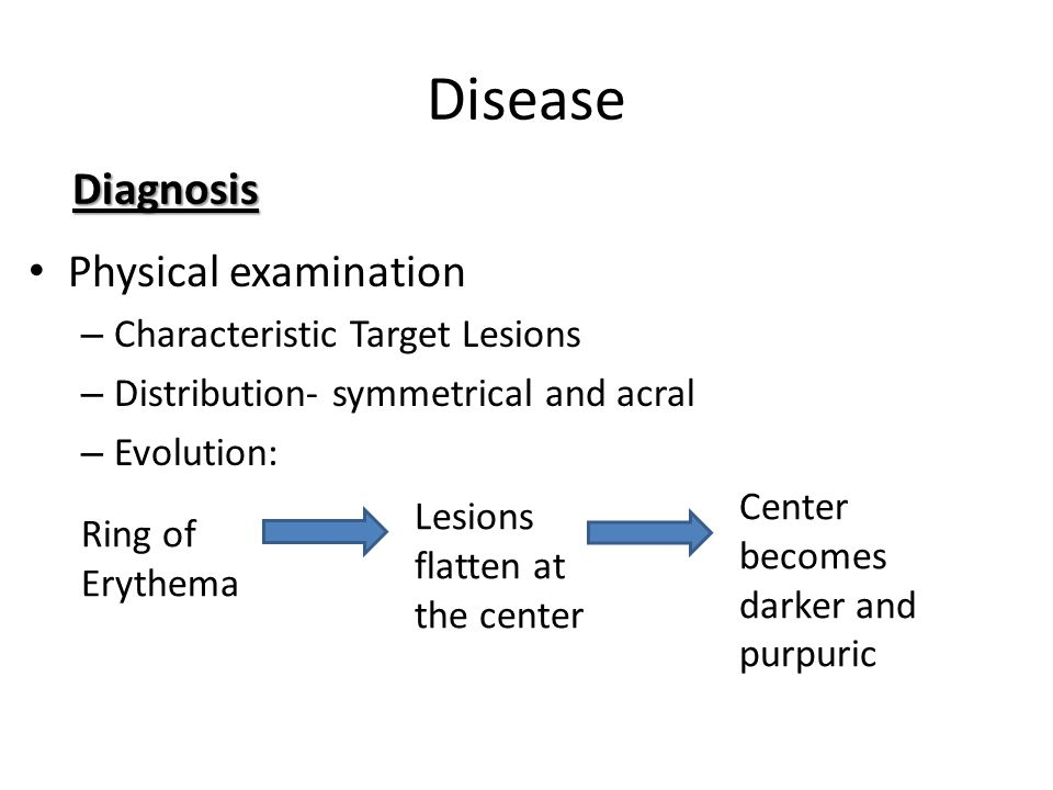Disease Diagnosis Physical examination Characteristic Target Lesions