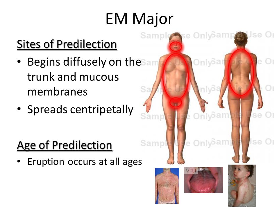 EM Major Sites of Predilection