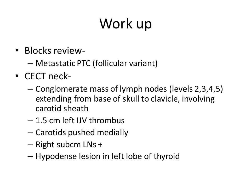 Work up Blocks review- CECT neck- Metastatic PTC (follicular variant)