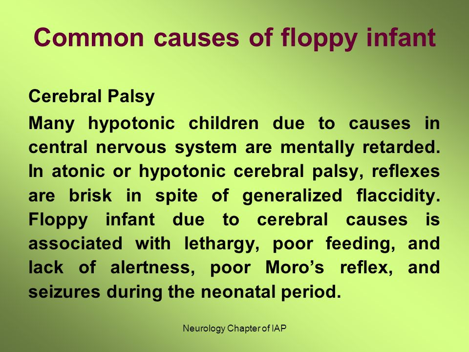 Common causes of floppy infant