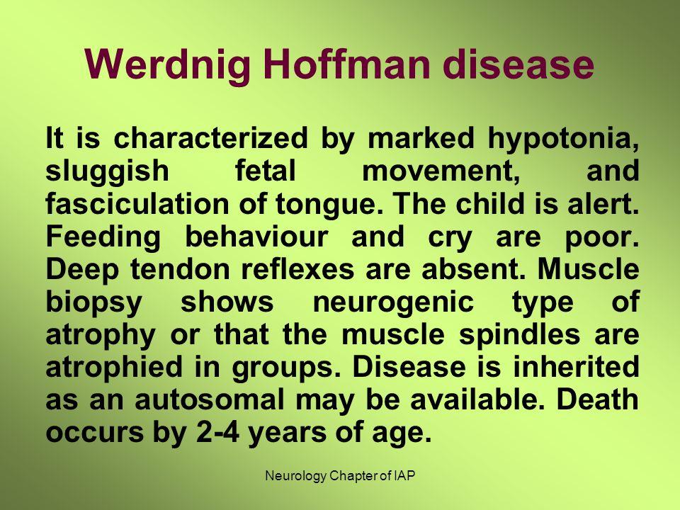 Werdnig Hoffman disease