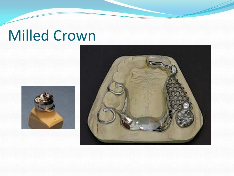 Milled Crown