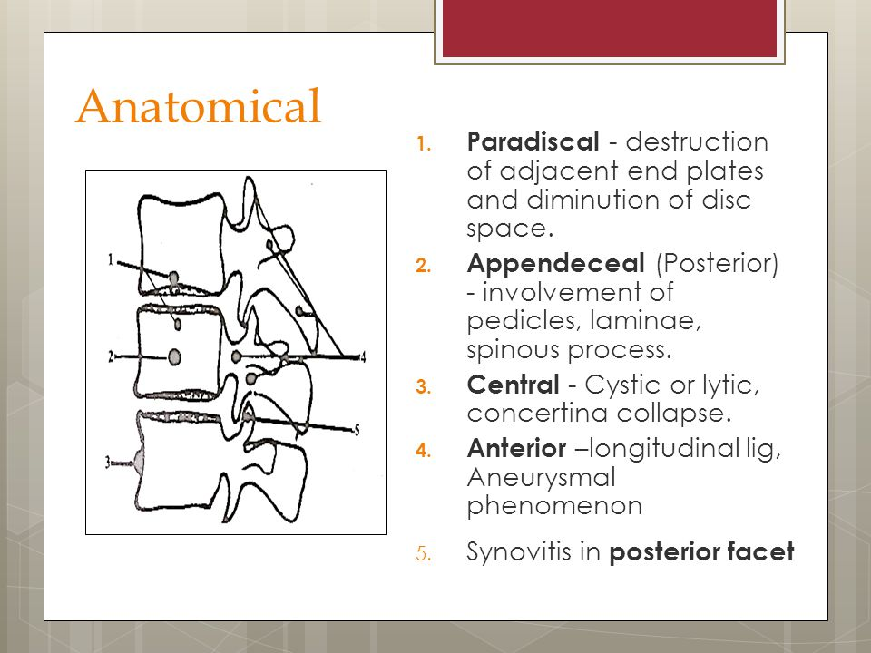 Anatomical Paradiscal - destruction of adjacent end plates and diminution of disc space.