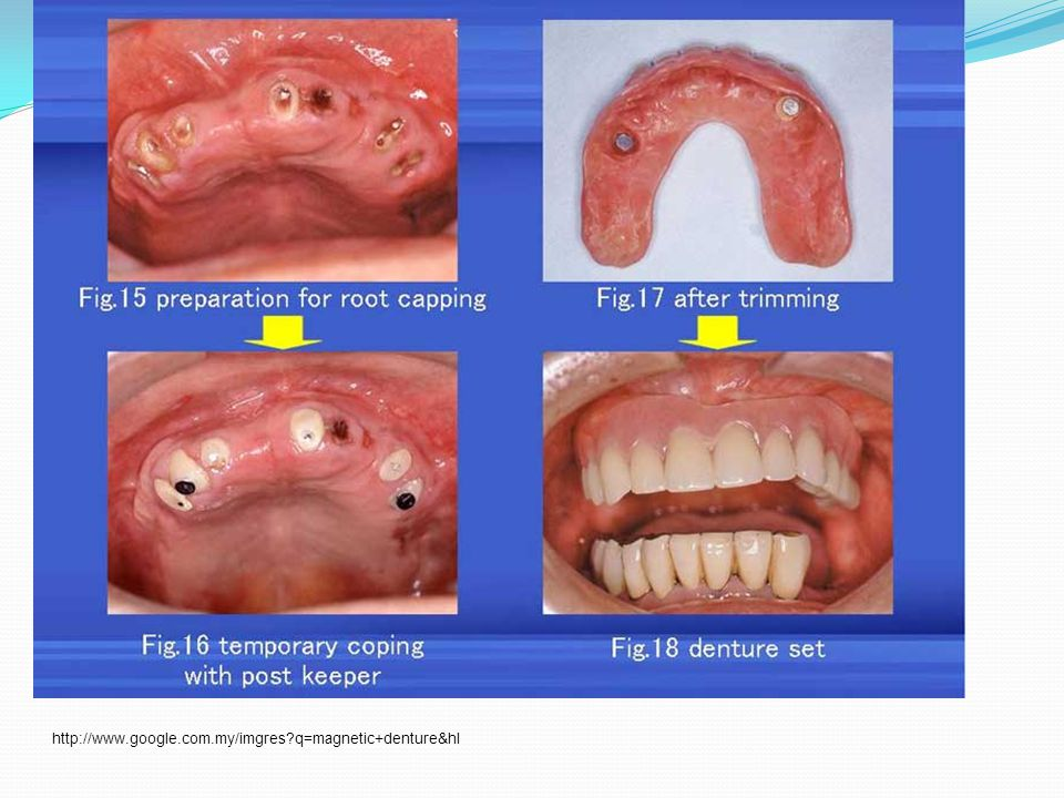 http://www.google.com.my/imgres q=magnetic+denture&hl