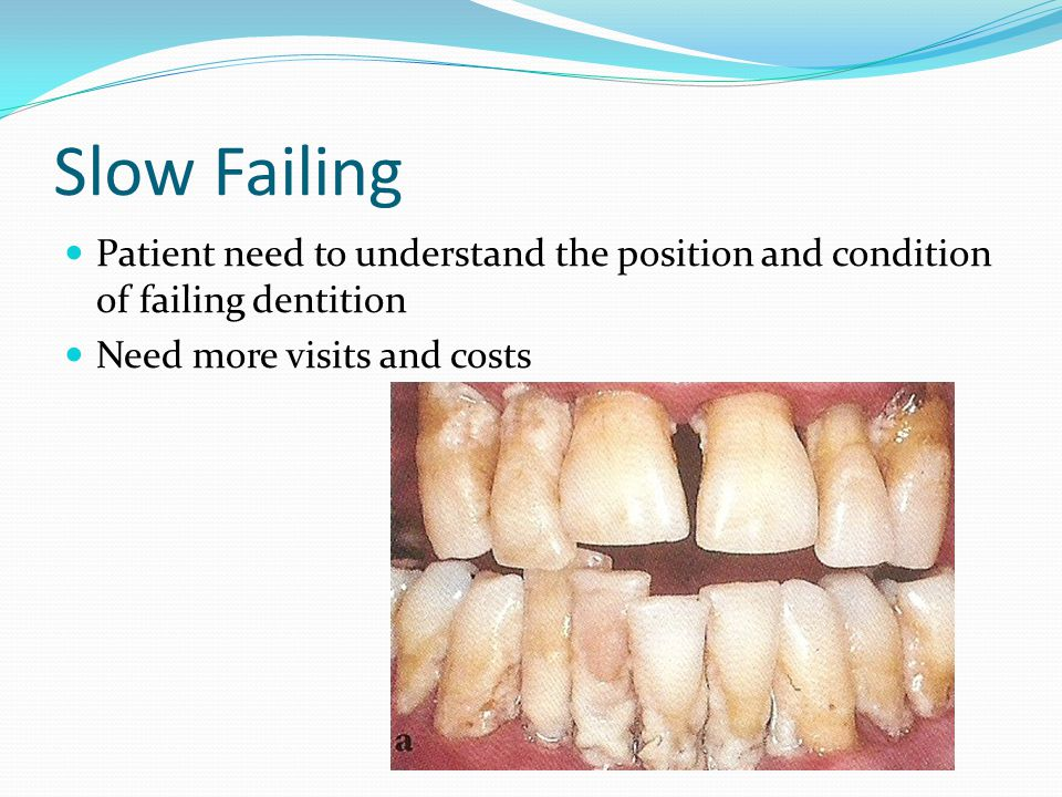 Slow Failing Patient need to understand the position and condition of failing dentition.