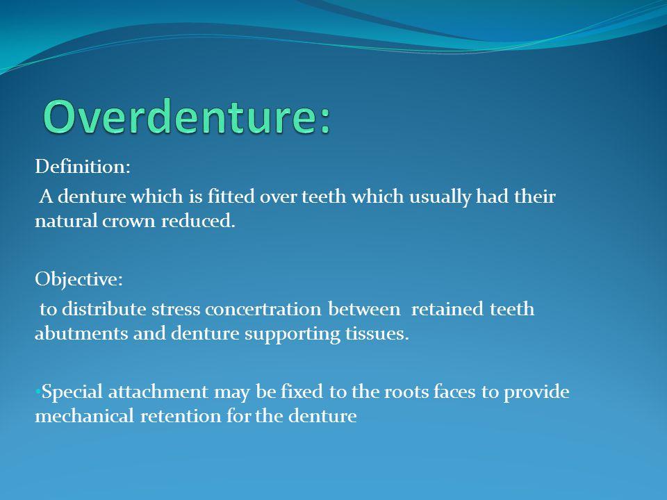 Overdenture: Definition: