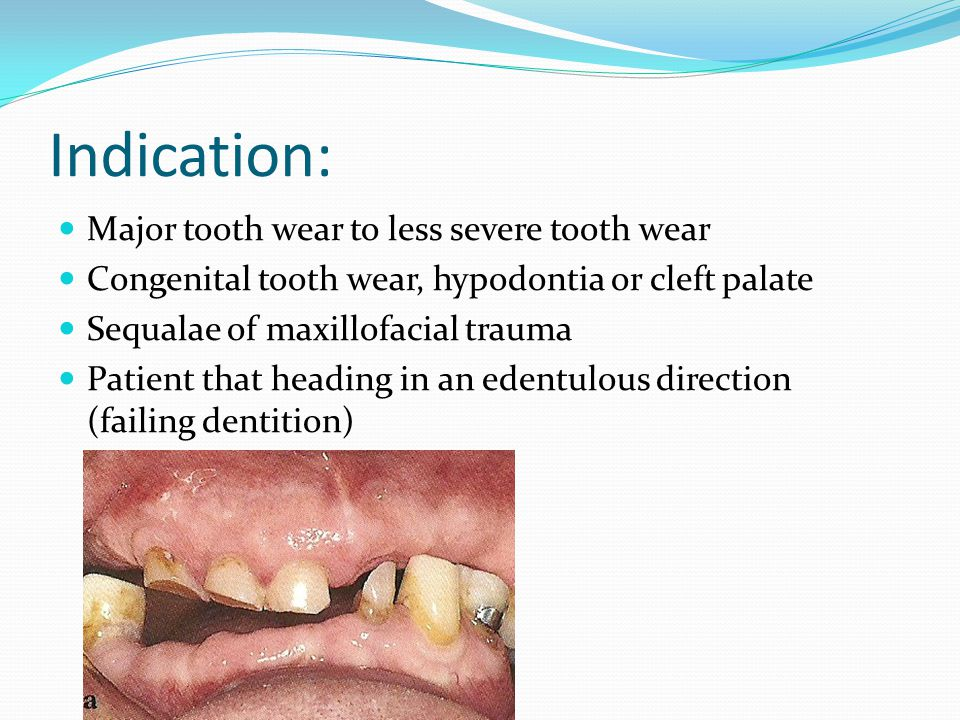Indication: Major tooth wear to less severe tooth wear