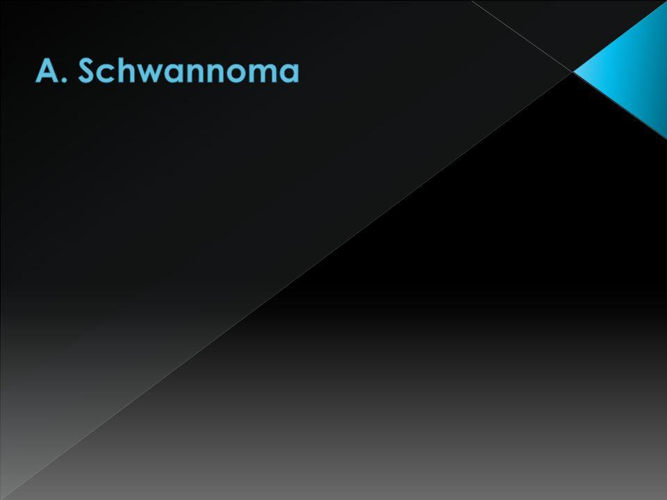 A. Schwannoma