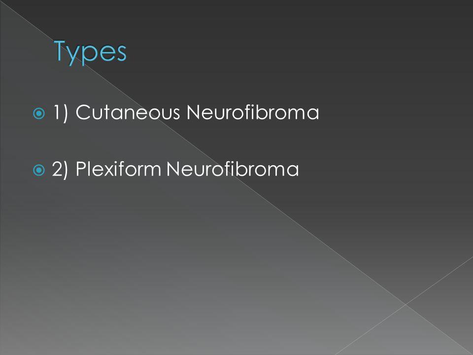 Types 1) Cutaneous Neurofibroma 2) Plexiform Neurofibroma