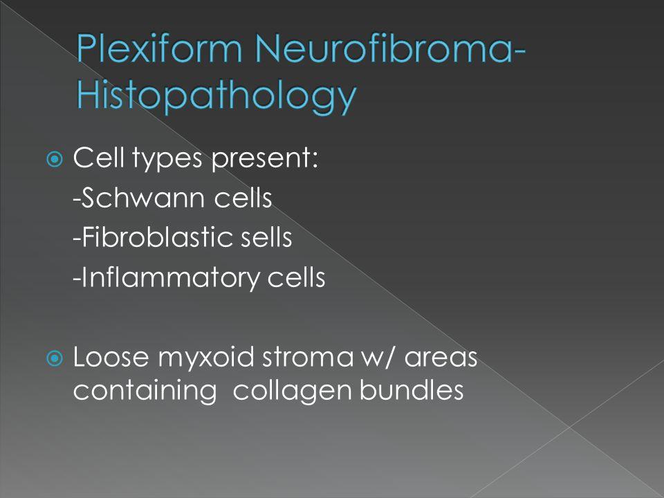 Plexiform Neurofibroma-Histopathology