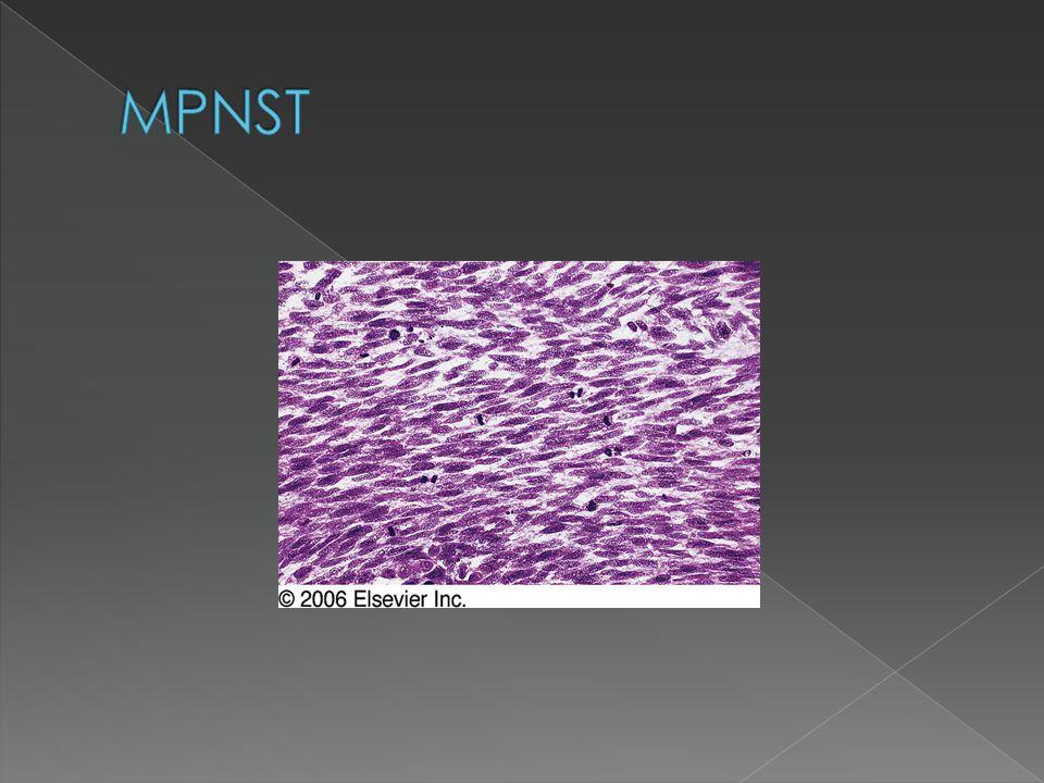 MPNST