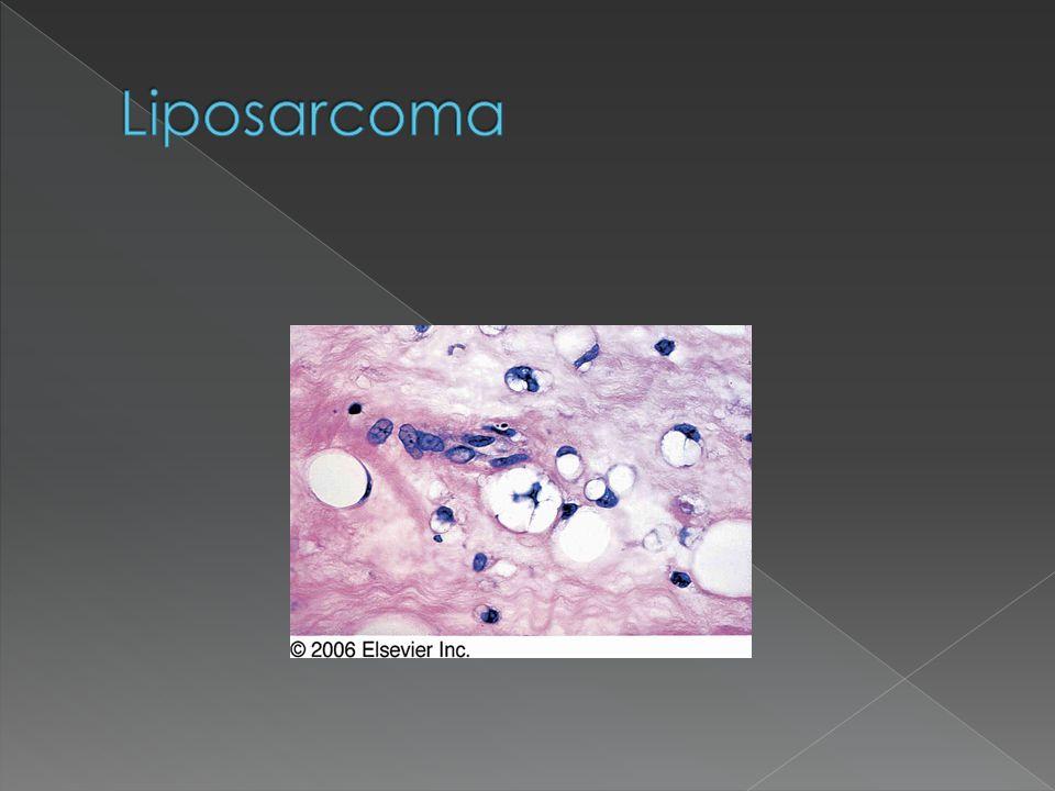 Liposarcoma
