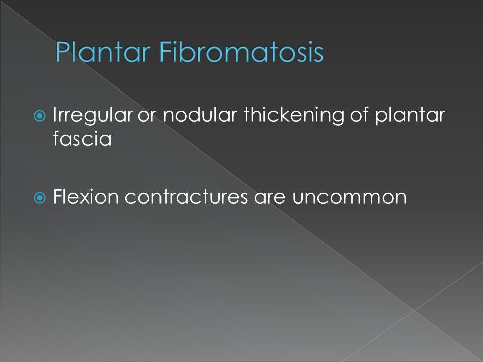 Plantar Fibromatosis Irregular or nodular thickening of plantar fascia