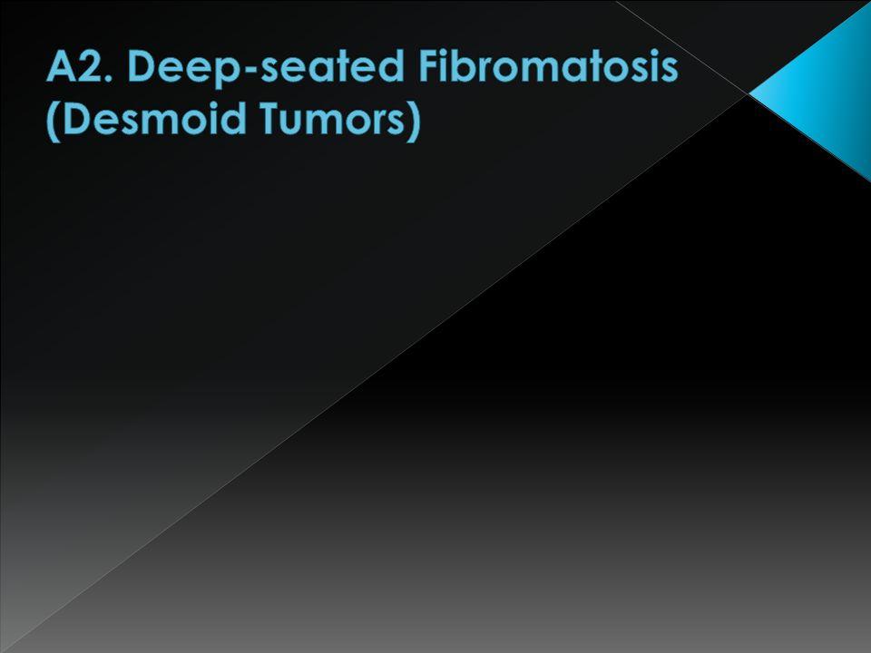 A2. Deep-seated Fibromatosis (Desmoid Tumors)