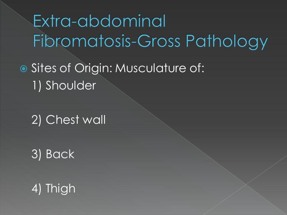 Extra-abdominal Fibromatosis-Gross Pathology