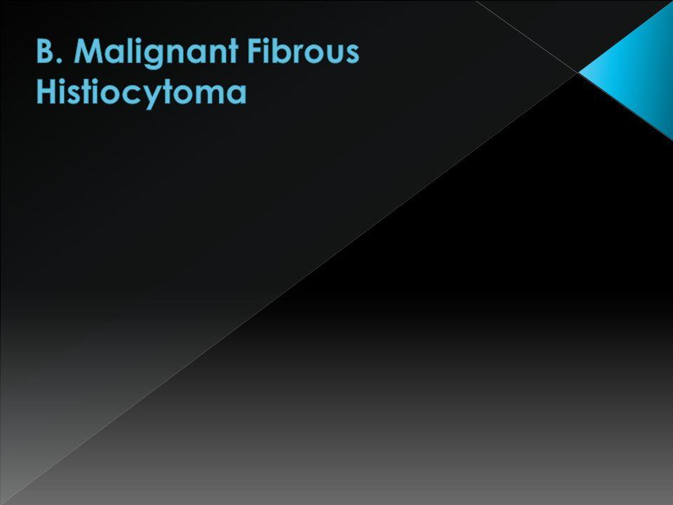 B. Malignant Fibrous Histiocytoma