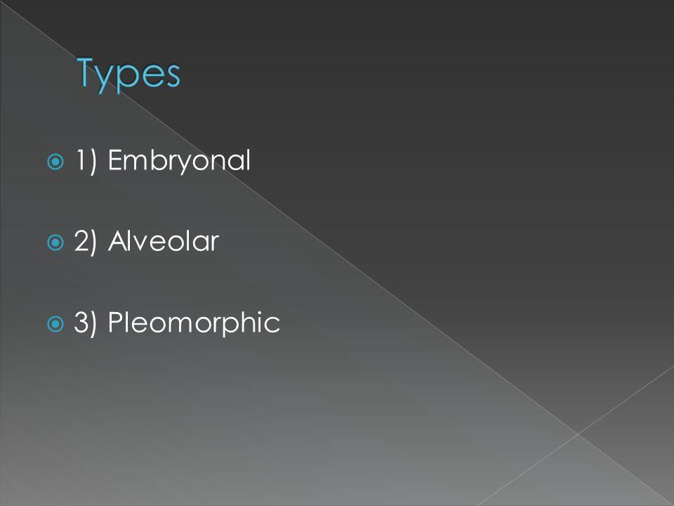 Types 1) Embryonal 2) Alveolar 3) Pleomorphic