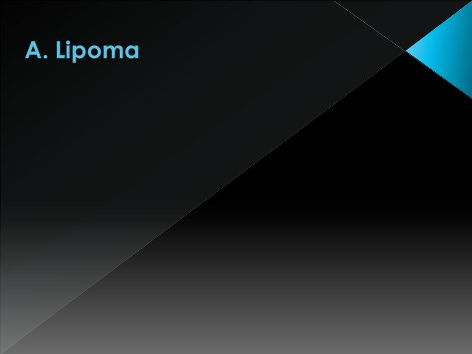 A. Lipoma