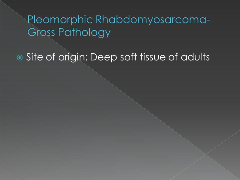 Pleomorphic Rhabdomyosarcoma-Gross Pathology