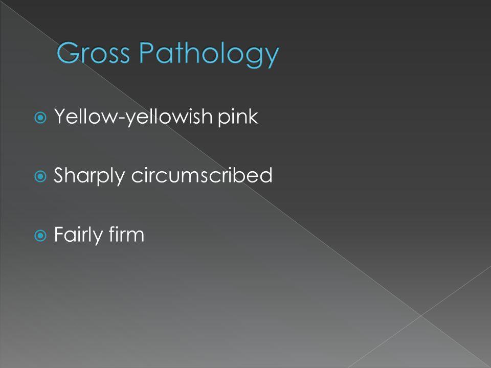 Gross Pathology Yellow-yellowish pink Sharply circumscribed