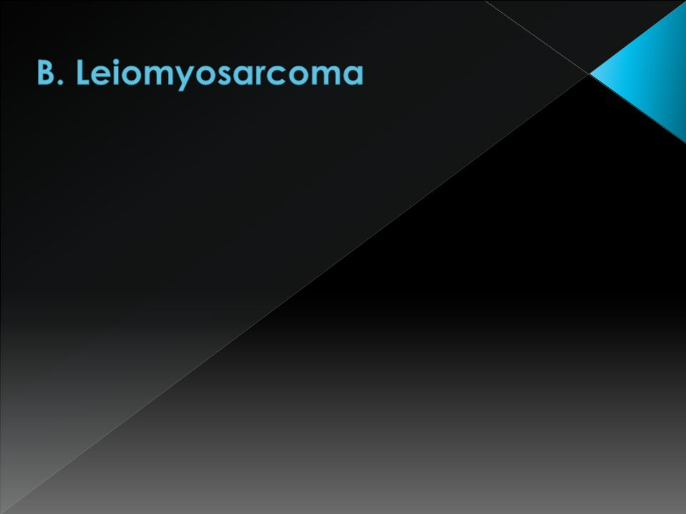 B. Leiomyosarcoma