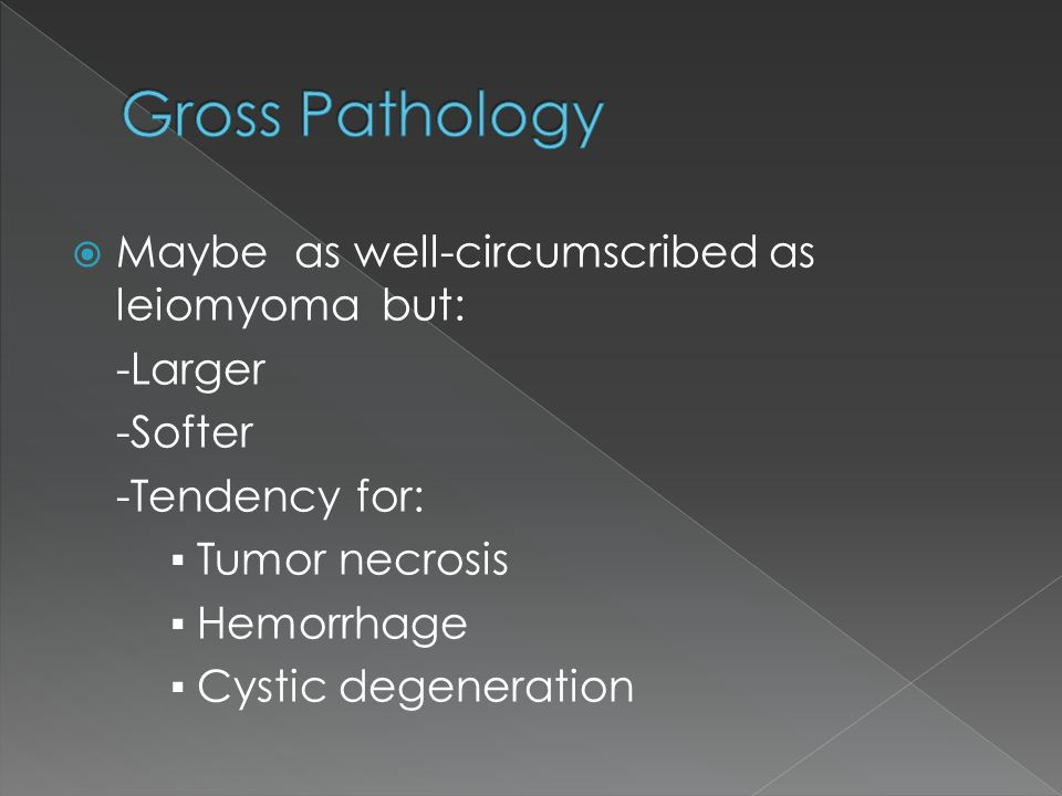 Gross Pathology Maybe as well-circumscribed as leiomyoma but: -Larger