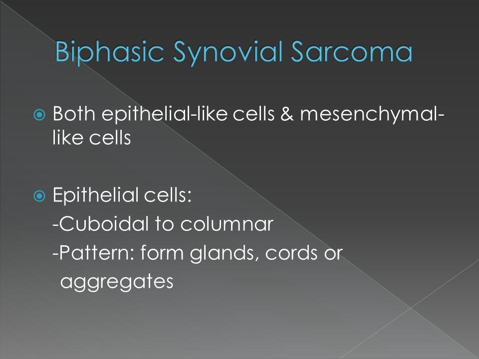 Biphasic Synovial Sarcoma