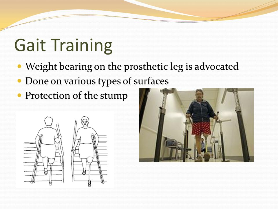 Gait Training Weight bearing on the prosthetic leg is advocated