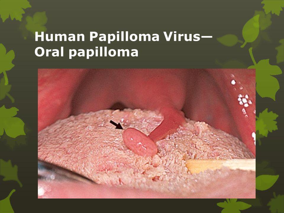 Human Papilloma Virus— Oral papilloma