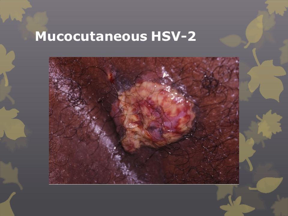 Mucocutaneous HSV-2