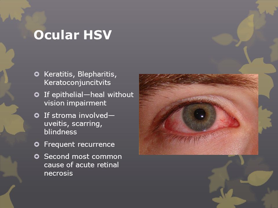 Ocular HSV Keratitis, Blepharitis, Keratoconjuncitvits