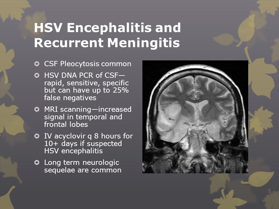 HSV Encephalitis and Recurrent Meningitis