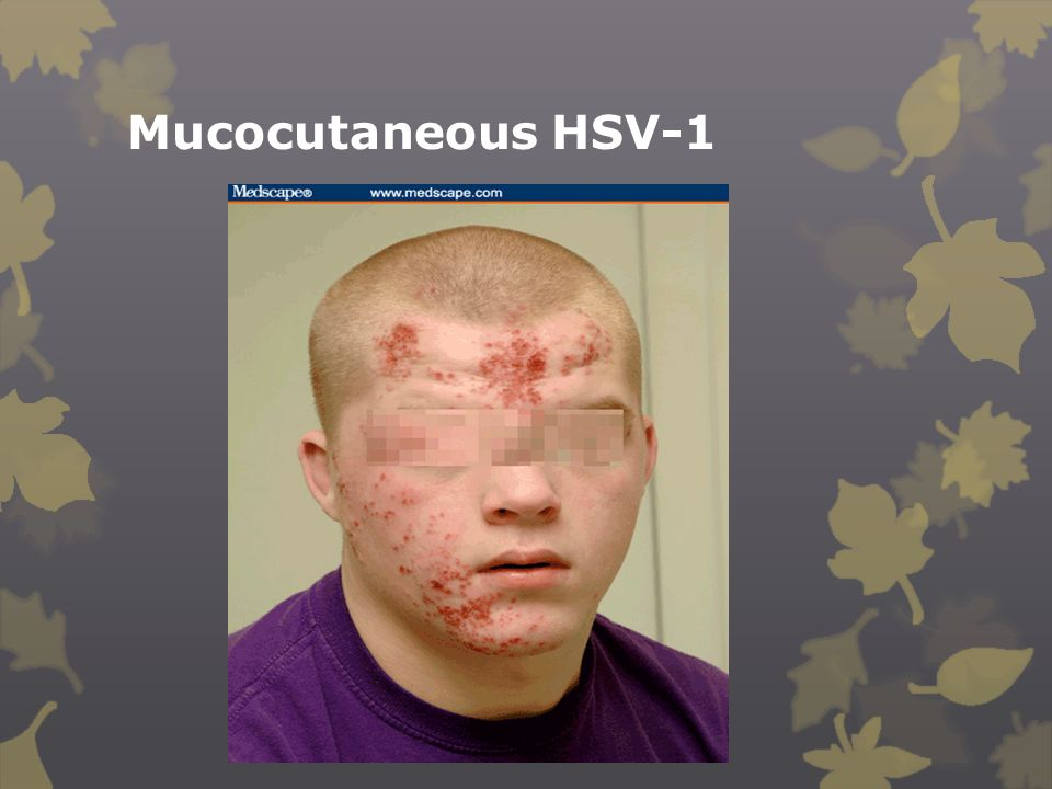 Mucocutaneous HSV-1