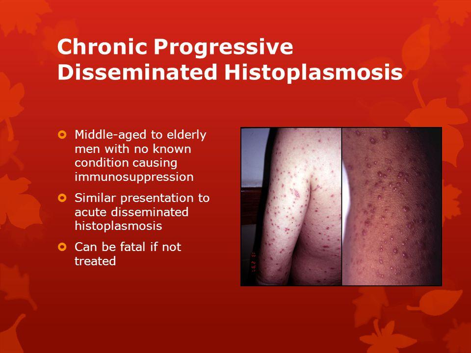 Chronic Progressive Disseminated Histoplasmosis