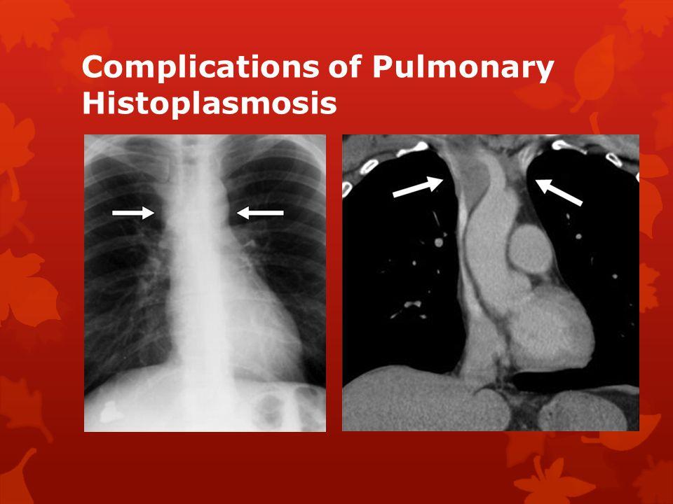 Complications of Pulmonary Histoplasmosis