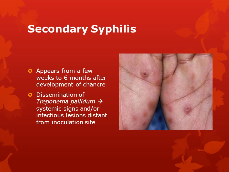 Secondary Syphilis Appears from a few weeks to 6 months after development of chancre.