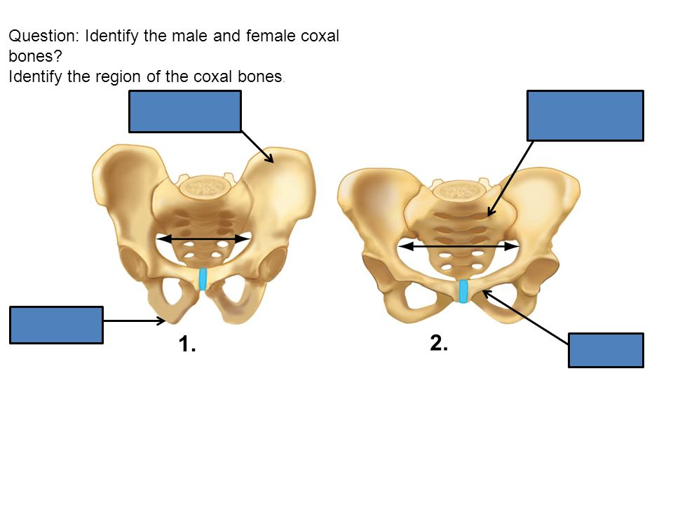 Question: Identify the male and female coxal bones