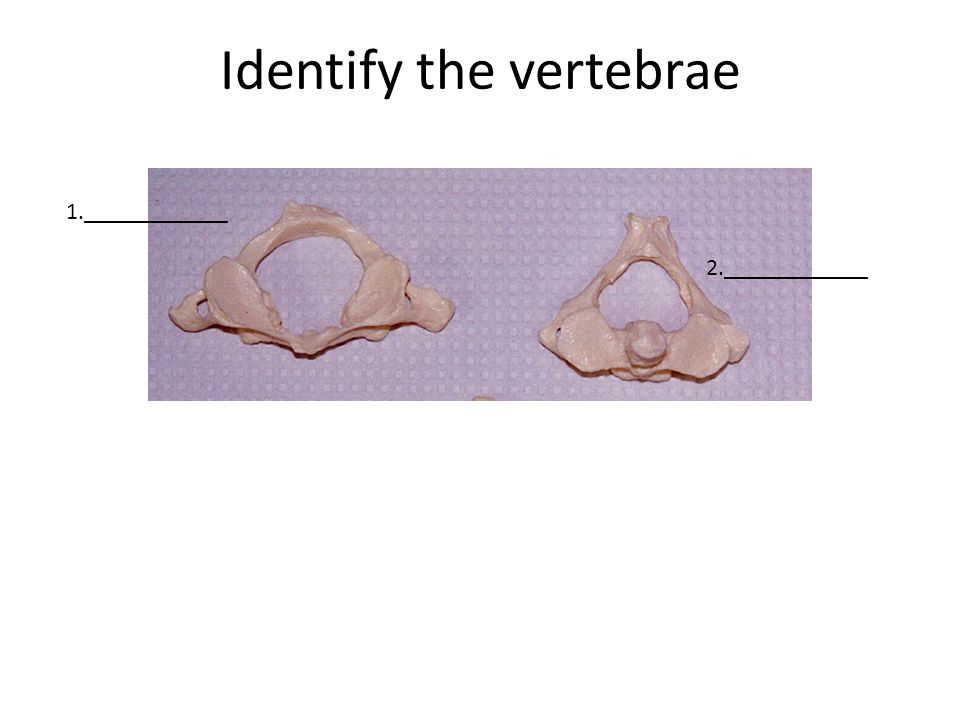 Identify the vertebrae