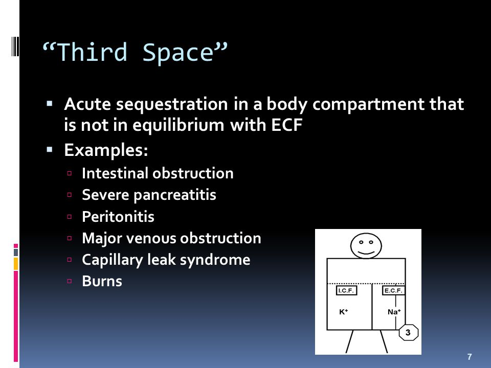 Third Space Acute sequestration in a body compartment that is not in equilibrium with ECF. Examples:
